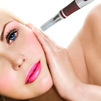 microneedling-24beauty